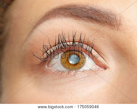 Cataract concept. Young woman's eye, closeup