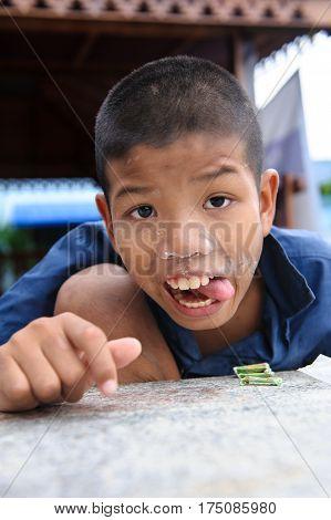 Thai Disability Boy