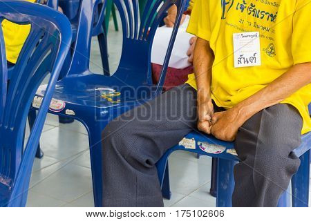 CHIANG RAI THAILAND - FEBRUARY 19 : Unidentified asian people suffering from leprosy in conference on February 19 2016 in Chiang rai Thailand.