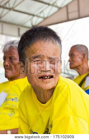 CHIANG RAI THAILAND - FEBRUARY 19 : Unidentified old asian woman suffering from leprosy on February 19 2016 in Chiang rai Thailand.
