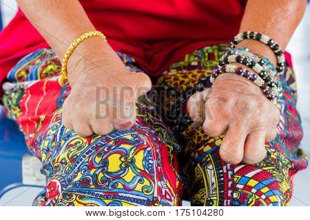 closeup female asian hands of old woman suffering from leprosy amputated hands with colorful clothing