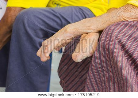 closeup hand of old asian man suffering from leprosy amputated hand