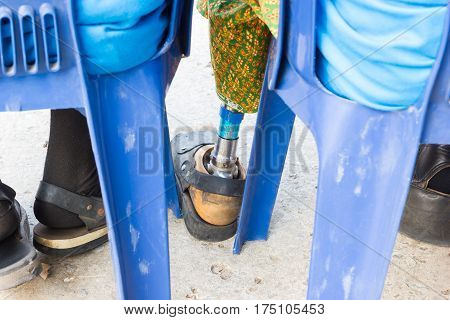 closeup asian old woman with aluminium prostheses on blue chair
