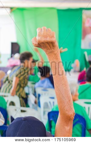 closeup old asian woman suffering from leprosy raise the hand in conference room