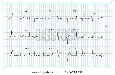 Heart Cardiogram Chart Vector. Illustration Of Wave Form On Checked Ecg Graph. Heart Rhythm, Ischemia, Infarction. Heartbeat