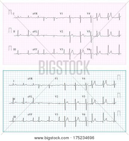 Heart Cardiogram Chart Vector. Set Healthy Heart Rhythm, Ischemia, Infarction. Vitality Heartbeat, Heart Electrocardiogram, Pulse
