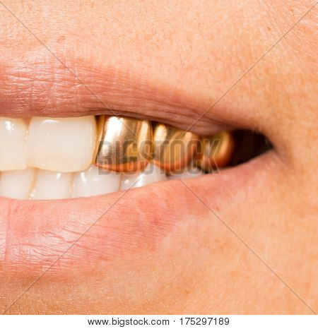 metal teeth in the mouth . Photo of the person