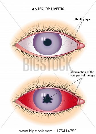 vectorial medical illustration of the symptoms of anterior uveitis
