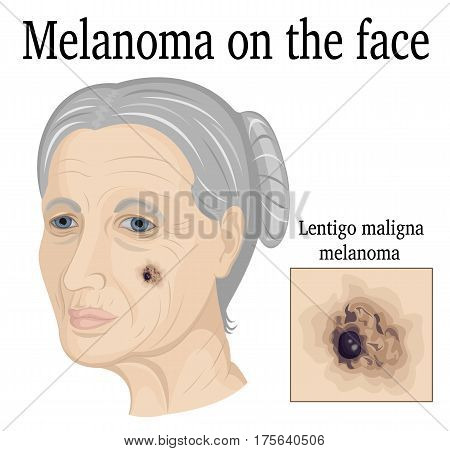 Lentigo maligna melanoma on the face of an elderly woman