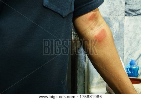 Arm of man with dermatitis problem of rash allergy rash and Health problem.