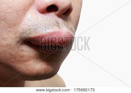 The skin around the mouth caused by an allergic reaction