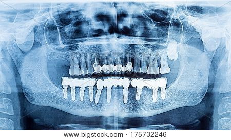 Dental X-Ray panoramic of upper and lower jaw.Dental implant prosthesis