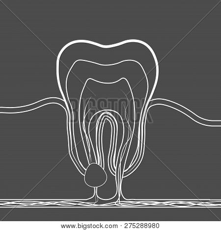 Dental Disease Linear Icon. Medical Illustration Of Tooth Root Inflammation, Tooth Root Cyst, Pulpit