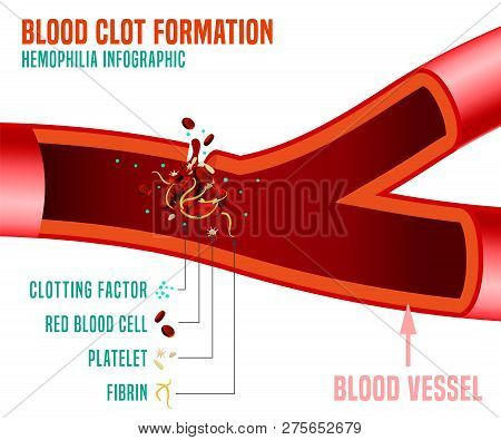 Blood Clot Formation. Hemophlia Infographic Facts. Editable Vector Illustration In Bright Colors Iso