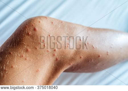 Skin Damaged By Insect Bites. Close Up. Skin With Many Red Spot And Scar From Sand Fly Bites