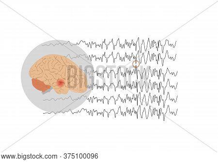 Vector Illustration Of Human Brain And Abnormal Brain Waves Waves Representing Focal Seizure At Temp
