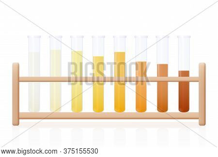 Urine Color Chart. Test Tubes With Clear, Yellow, Orange And Even Darker Urine As An Indicator Of Th