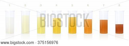 Urine Samples In Specimen Cups With Different Colored Urine - Gradation From Clear To Yellow And Ora