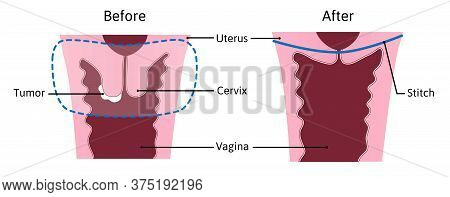 Trachelectomy - Surgery Removal Of The Cervix. Medical Vector Illustration Marked With Lines. Before