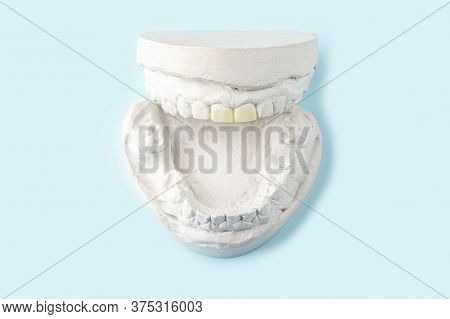 Stomatologic Plaster Cast, Molds Of Human Jaws And Teeth On Blue Background. Dental Casting Gypsum F