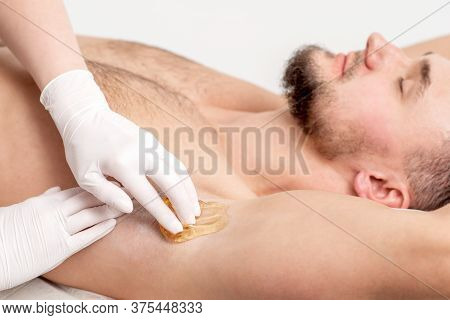 Depilation And Epilation Male Armpit With Liquid Sugar Paste. Hand Of Cosmetologist Applying Wax Pas
