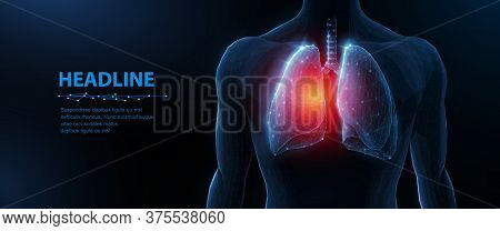 Lung Disease In Human Body. Abstract Vector 3d Lungs And Red Spot. Human Health, Respiratory System,