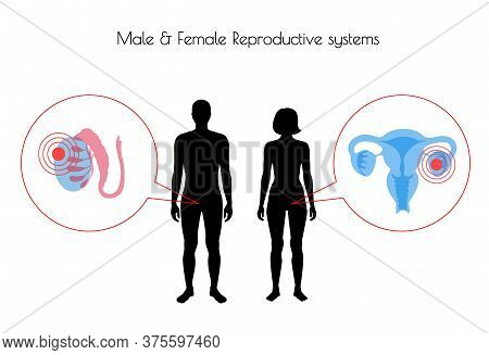 Vector Isolated Illustration Of Pain And Inflammation In Reproductive System In Woman And Man Silhou