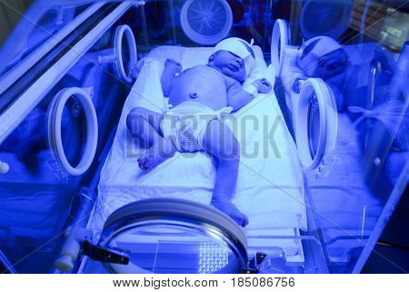 Newborn Having A Treatment For Jaundice Under Ultraviolet Light