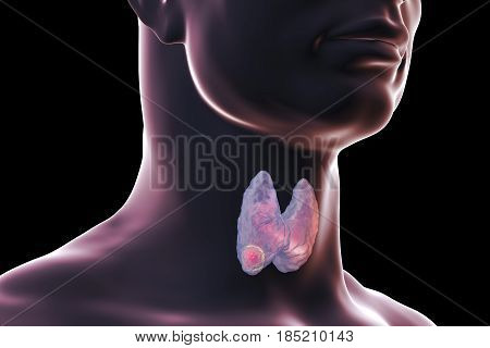 Thyroid cancer. 3D illustration showing thyroid gland with tumor inside human body isolated on black background