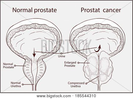 normal prostate and acute prostatitis. Medical illustration