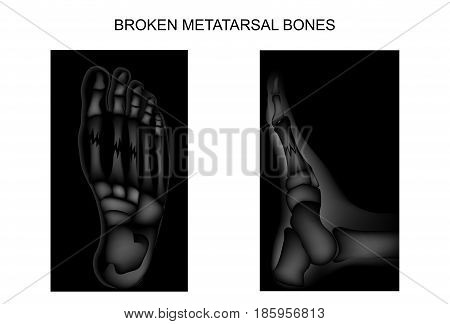 vector illustration of fractures of the metatarsal bones of the foot