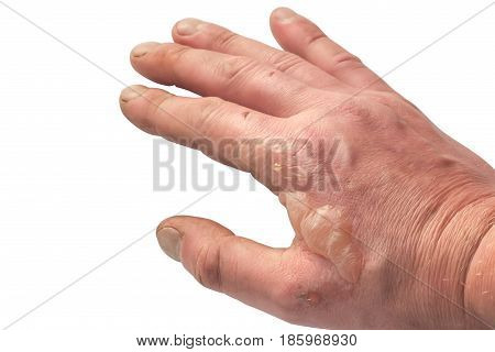 Burns on hand isolated on white background