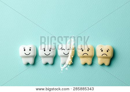 Teeth Whitening. Healthy White Teeth Are Smiling And Yellow From Cigarettes And Sad Coffee On Green