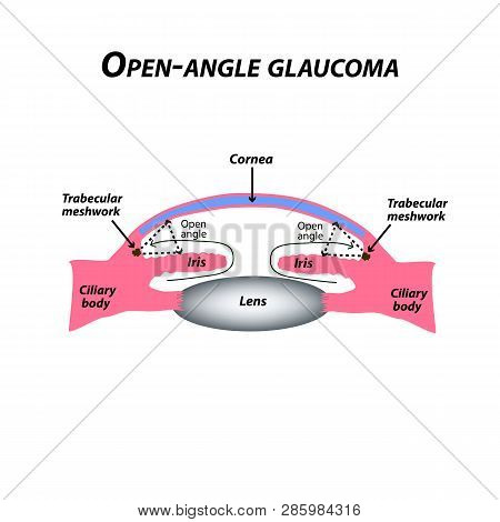 Open-angle Glaucoma. A Common Type Of Glaucoma. The Anatomical Structure Of The Eye. Infographics. V