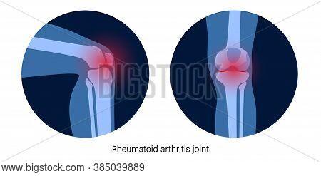 Rheumatoid Arthritis Knee Joint Icon. Clinic Logo With Pain In Leg. Human Bone Anatomy Flat Vector I