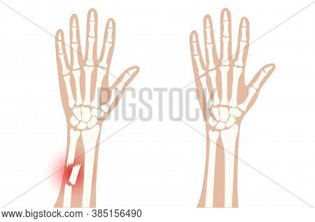 X Ray Of Arm Fracture With Red Pain Point And Normal Arm. Broken Hand With Inner Closed Comminuted T