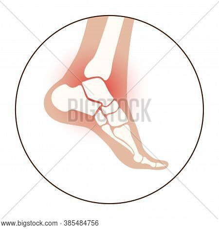 Arthritis Joint In The Ankle. Osteoarthritis Logo For Clinic. Leg Pain Icon. Human Foot Bone Anatomy