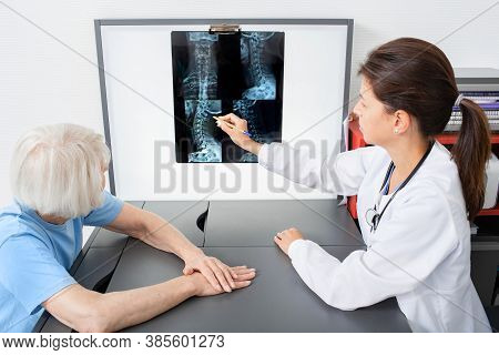 Doctor Consider And Discuss With Senior Patient An X-ray Image Of Her Cervical Spine. Diagnostics An