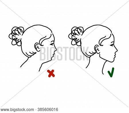 Correction Of The Lower Jaw. Sketch On A White Background. Vector Illustration.