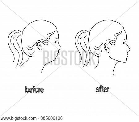 Silhouette Of A Female Head On A White Background. Facial Correction And Posture. Vector Illustratio