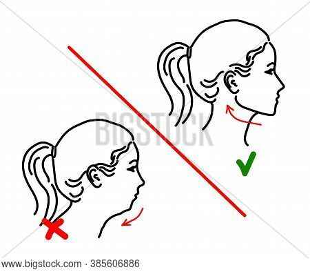 Silhouette Of A Female Face On A White Background. Correction Of The Lower Jaw. Vector Illustration.