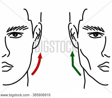 Silhouette Of A Male Face On A White Background. Correction Of The Shape Of The Face And Chin. Vecto