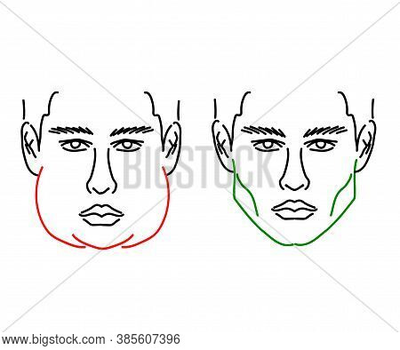 Silhouette Of A Male Face On A White Background. Correction Of The Lower Jaw. Vector Illustration.