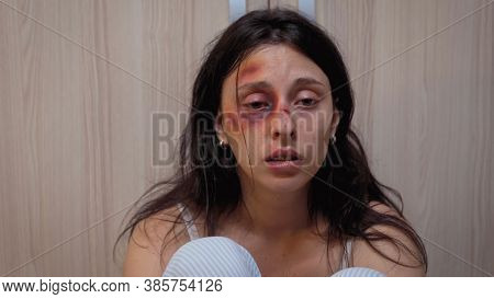 Woman With Bruise Eye Suffering Sitting On The Floor Full Of Pain. Traumatised Helpless Terrified Vu