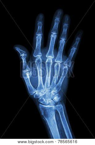 Multiple Fracture At Index,little Finger,metacarpal Bone