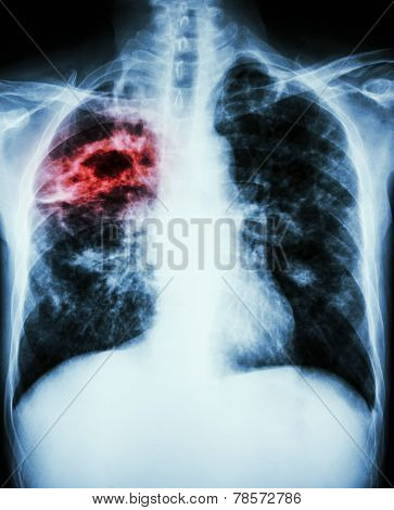film chest x-ray show cavity at right lungfibrosis & interstitial & patchy infiltrate at both lung due to Mycobacterium tuberculosis infection (Pulmonary Tuberculosis) poster