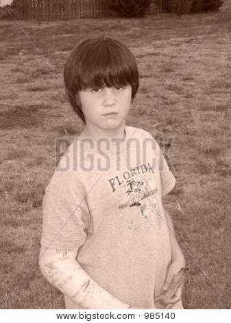 Sepia Boy With Broken Arm