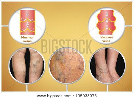 Varicose veins on a female senior legs. The structure of normal and varicose veins