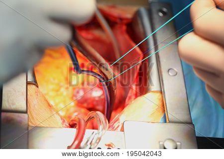 Process of cardiac surgical operation. Macro photo