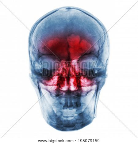 Sinusitis . Film x-ray of human skull with inflamed at sinus .